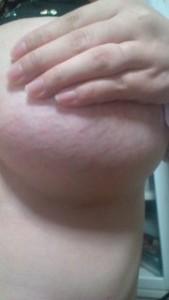 バストの妊娠線画像