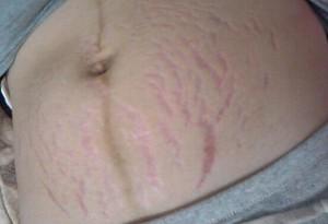 産後の妊娠線