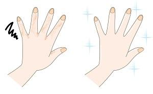 荒れた手ときれいな手